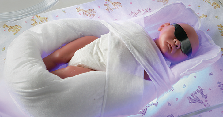 Billisoft blankes swaddle a newborn with hyperbilirubinemia. Ultra-soft intensive therap